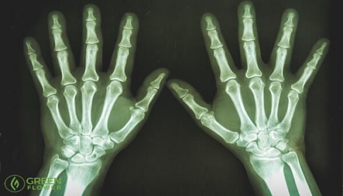 Studien legen nahe, dass Cannabis Knochenbrüche und -krankheiten ...